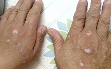 过量的维生素C会导致白癜风病发吗