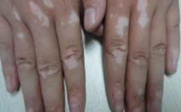 怎样治疗白癜风疾病比较好呢